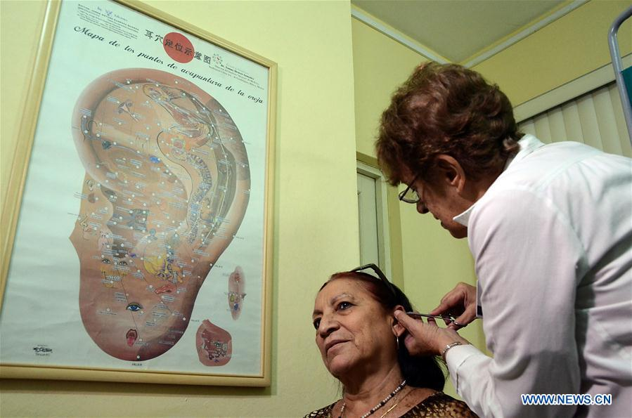 CUBA-HAVANA-TRADITIONAL CHINESES MEDICINE-TREATMENT