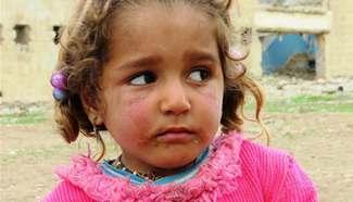 Lives at Hammam Aleel Camp, Iraq