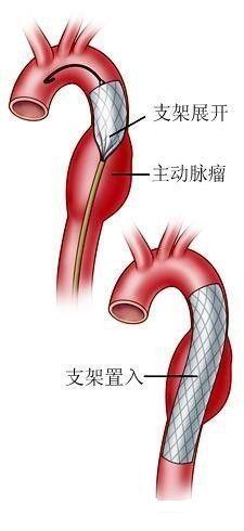 "3d手术口腔内淋巴结-主动脉夹层死亡率极高 ""喜欢""高血压病人和孕妇   主动脉夹层是什么"