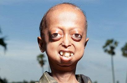 印度14歲男童患早衰症軀體已百歲