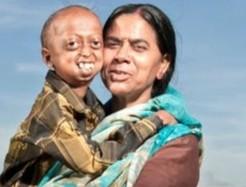 印度一男孩患早衰症外表似老頭