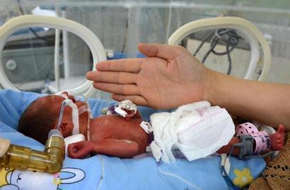 袖珍婴儿(5)图片 袖珍婴儿(5)图片大全_社会热点图片 ...