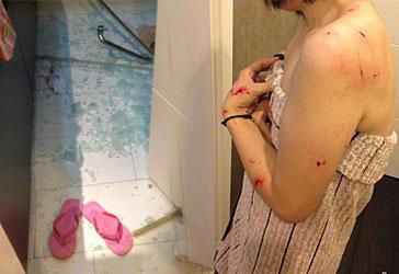 手机 武汉/武汉女子洗澡时浴室钢化玻璃自爆全身20多处被割伤