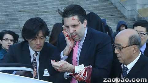 外媒:美国驻韩国大使遭袭受伤入院