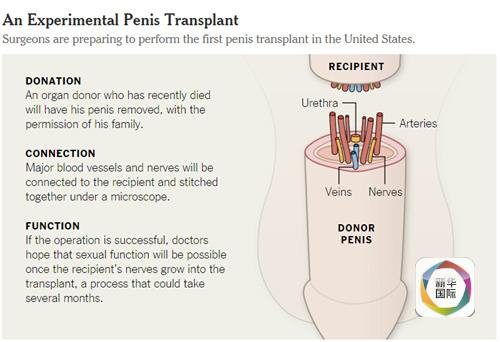 美国首例阴茎移植手术或可生儿育女 全球已有