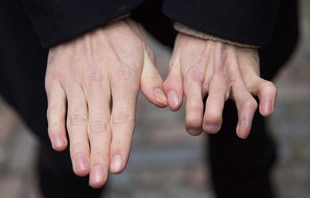 国外一男子将脚趾移植在手指上 称不影响生活(组图)