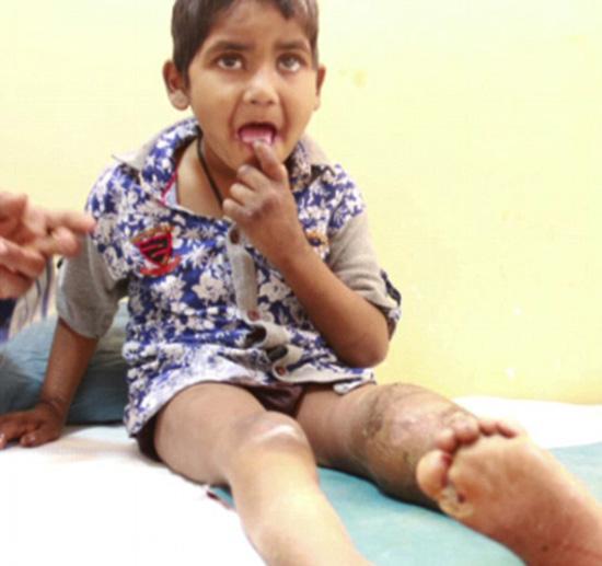 印度姐弟患罕见无痛症 啃掉自己手指不觉疼痛