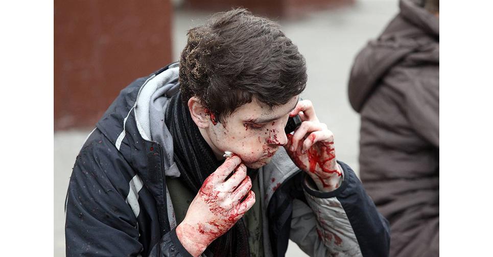 """莫斯科時間2010年3月29日早晨7點50分左右,莫斯科市""""盧比揚卡""""地鐵站內一節車廂發生爆炸。其後,莫斯科地鐵""""文化公園""""站發生爆炸,隨後又發生第三起爆炸事故,地點位于""""和平大街""""地鐵站。此次事件被稱為莫斯科地鐵連環爆炸案。據美國媒體報道,一個與車臣分裂分子有關聯的網站宣稱對該起地鐵爆炸案負責。圖為莫斯科地鐵爆炸案受害者逃離現場,滿臉血污,劫後余生。"""