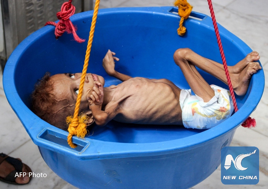 WFP head blasts Houthi rebels for diverting aid in Yemen