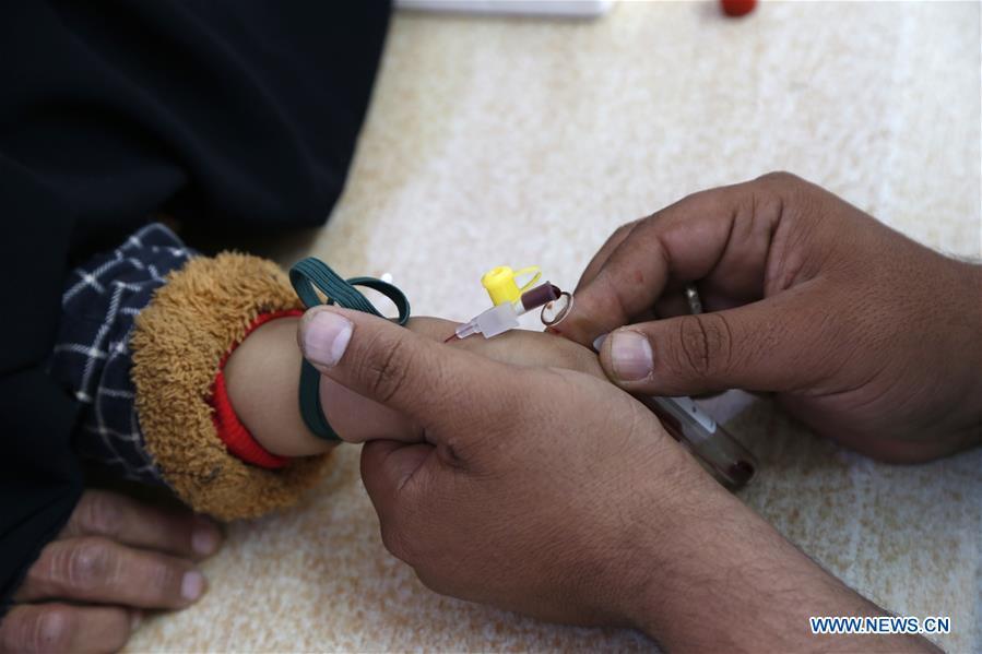 也門薩那營養不良兒童
