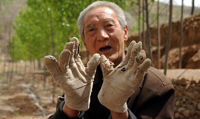Pic story: handicapped veteran plants trees on barren mountains for years in Hebei