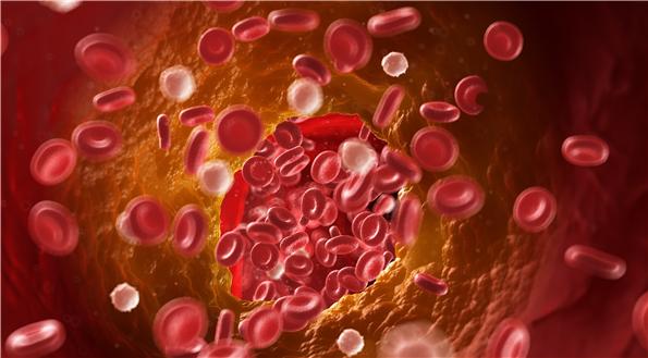 血脂指標全低了怎麼辦?