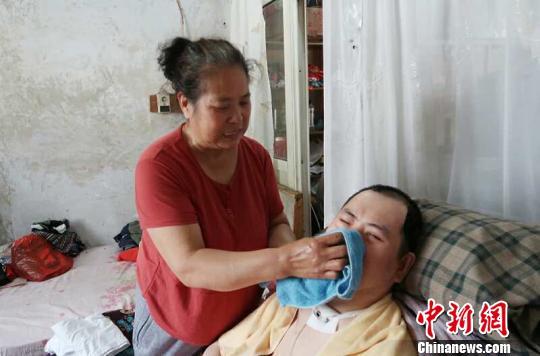 每次喂完食物後,梁青蘭都要仔細地幫兒子清理幹凈。 尚明俠 攝
