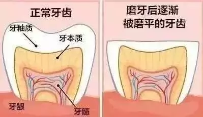 睡觉磨牙咋回事_【健康】为什么有人睡觉会磨牙?果真是肚子里有蛔虫?答案在这里