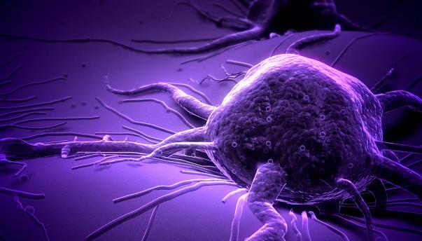 美新型成像技术有助早期发现肿瘤