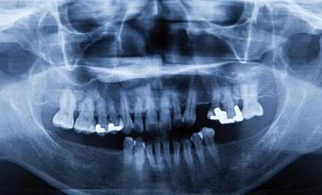 牙齿是不是骨骼