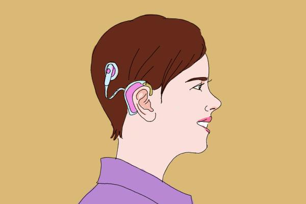 认识人工耳蜗