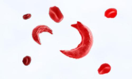 鐮刀型細胞貧血症,你知道多少?