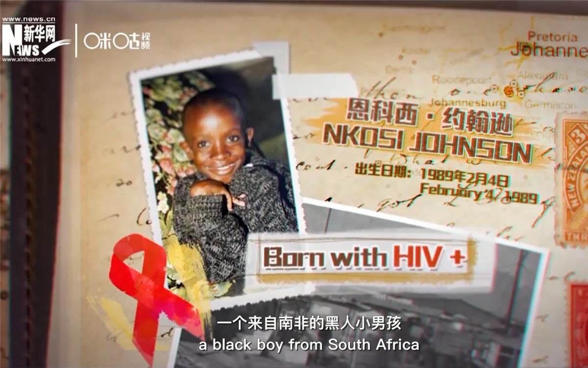 南非小男孩恩科西·约翰逊是联合国最小的抗艾斗士