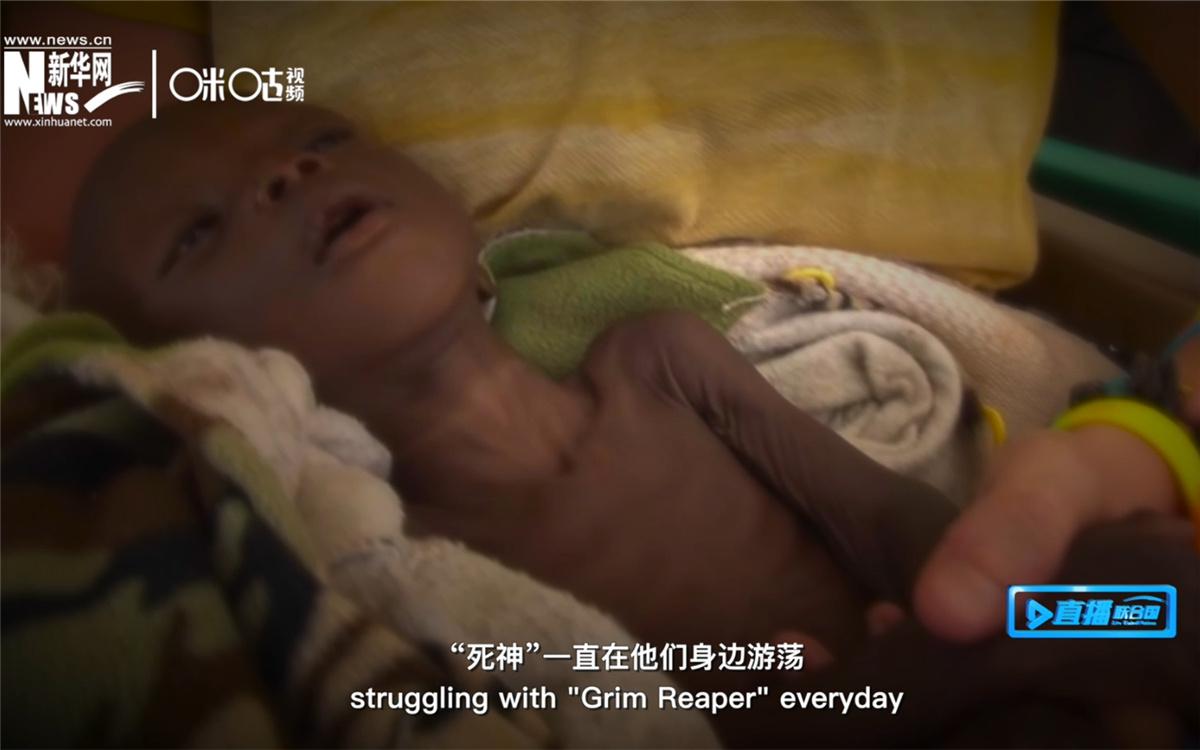 全球五岁以下严重急性营养不良的孩子约有一千六百万人