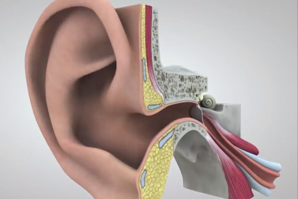 """这些技术助听障人士重获新""""声"""""""