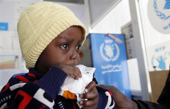 In pics: malnutrition ward supported by humanitarian agencies in Sanaa