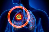 肺結核肺部感染是致癌誘因嗎?