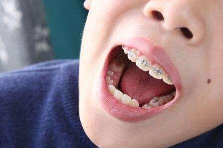 【健康解碼】矯正牙齒真的可以瘦臉嗎?