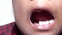 世界首例 印男孩取出526顆牙齒
