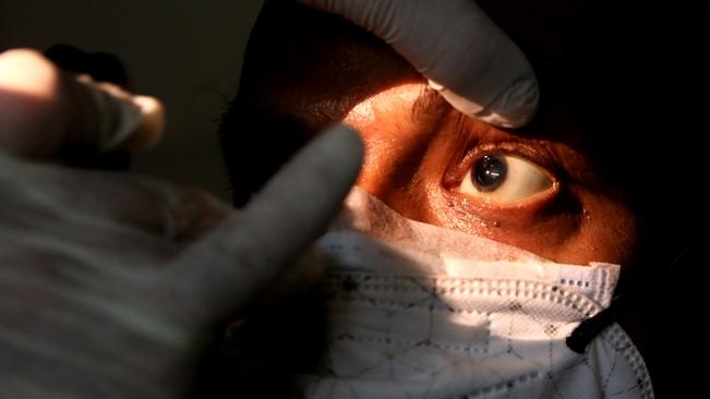 印度:印媒稱全國報告超3萬例毛霉菌病病例