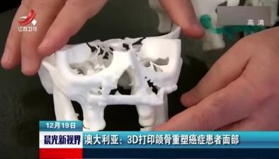 澳大利亞:3D打印頜骨重塑癌症患者面部