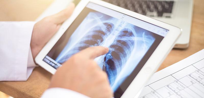 中國專家分享新冠肺炎患者急性呼吸窘迫並進展至死亡的危險因素