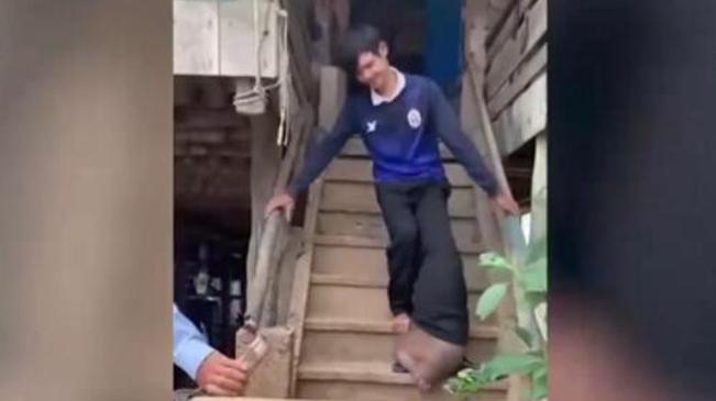 不幸!柬埔寨男子被蚊子叮咬後腿腫成五倍大