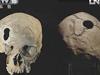 [走進科學]奧秘:五千年的前開顱手術