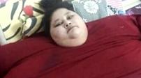 """500公斤""""全球最胖女子""""抵達印度做減重手術"""