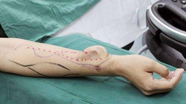"""手臂上""""種耳朵"""" 修復面部損傷"""