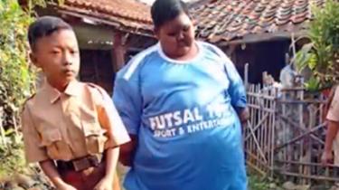 負擔!印尼191斤男孩切胃減肥 切除面積85%