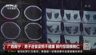 廣西南寧:男子進食姿勢不健康 肺內驚現核桃仁