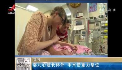 英國:嬰兒心臟長體外 手術借重力復位
