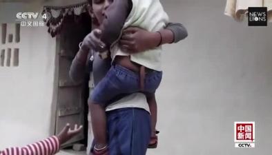 """印度男童長30厘米尾巴 被視作""""猴神""""敬拜"""