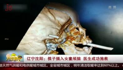 遼寧沈陽:筷子插入女童顱腦 醫生成功施救
