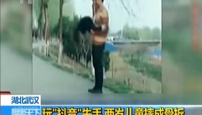 """湖北武漢:玩""""抖音""""失手 兩歲兒童摔成骨折"""
