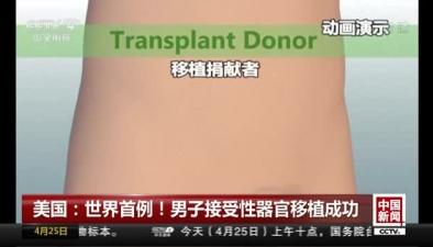 美國:世界首例!男子接受性器官移植成功