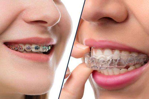 【世界正畸日】隱形VS金屬牙齒矯正器 誰贏?