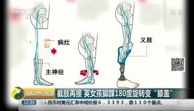 """截肢再接 英女孩腳踝180度旋轉變""""膝蓋"""""""