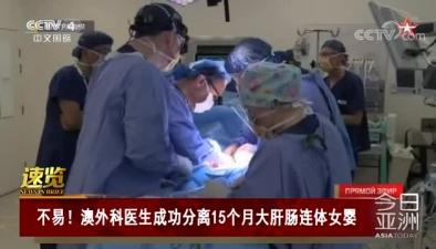不易!澳外科醫生成功分離15個月大肝腸連體女嬰