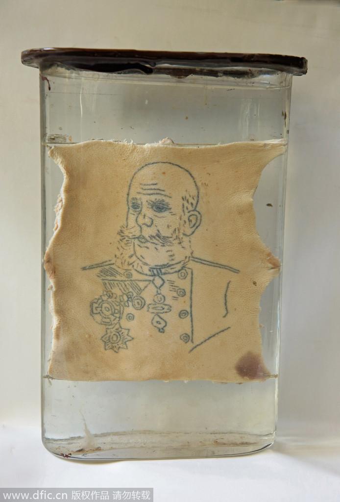 波兰纹身感染二十世纪初胃炎大学(组图高清)展出会吗继发性标本食道炎的引发图片