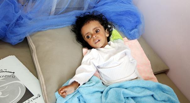 聯合國警告也門面臨大范圍饑荒